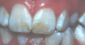 Fluorosis Correlates With Heart Attacks
