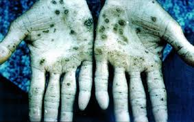 arsenic-effect-on-hands