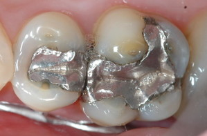 Poisoned by Amalgam Fillings