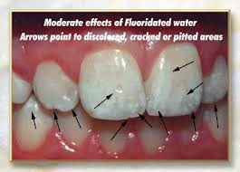 Fluoridation Does Not Save $38